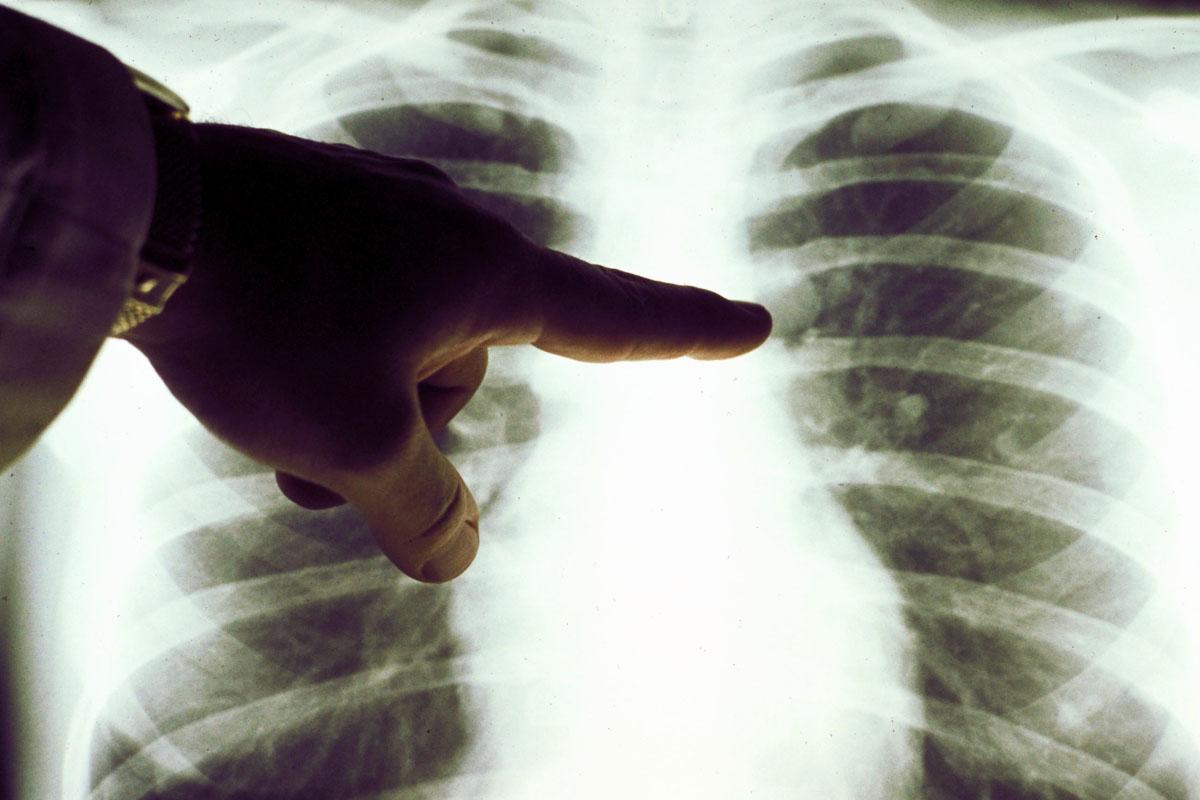 Tumor en el pulmón de un fumador. (Foto: Getty)