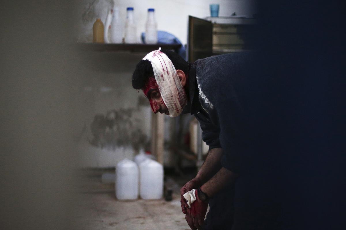 Un herido tras un ataque aéreo de las fuerzas fieles al régimen contra Douma en febrero. (Foto: AFP)