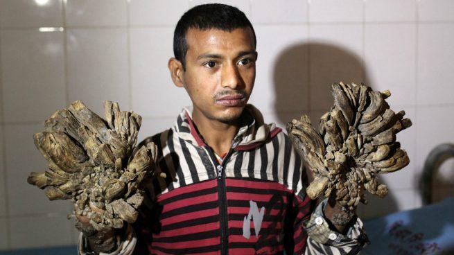 Un hospital de Bangladesh se prepara para operar al cuarto caso de «hombre-árbol» diagnosticado