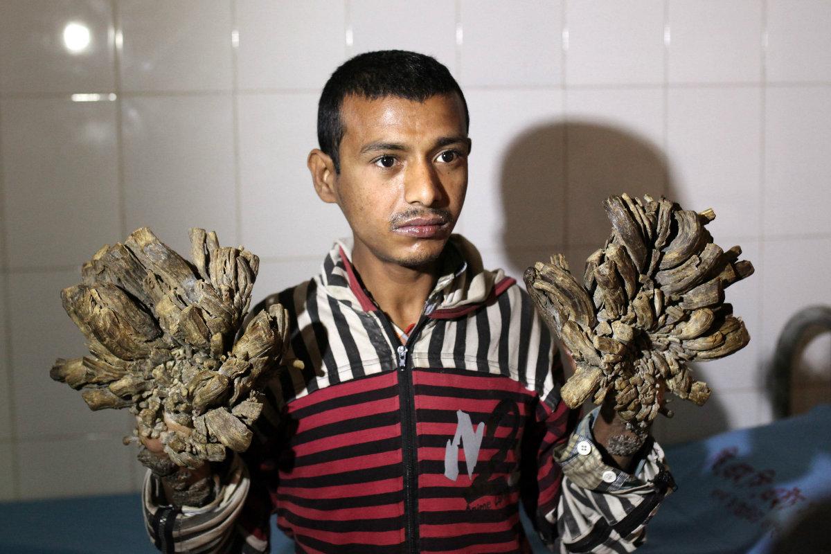 Abul enseña sus manos, que parecen ramificaciones arbóreas, a la cámara