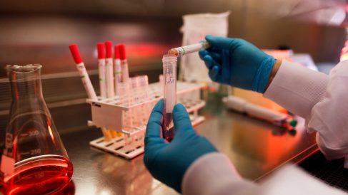 Equipo de investigación de la Universidad Complutense de Madrid logra un gran avance en el diágnostico de tumores cancerígenos en la boca. (Foto: Getty)