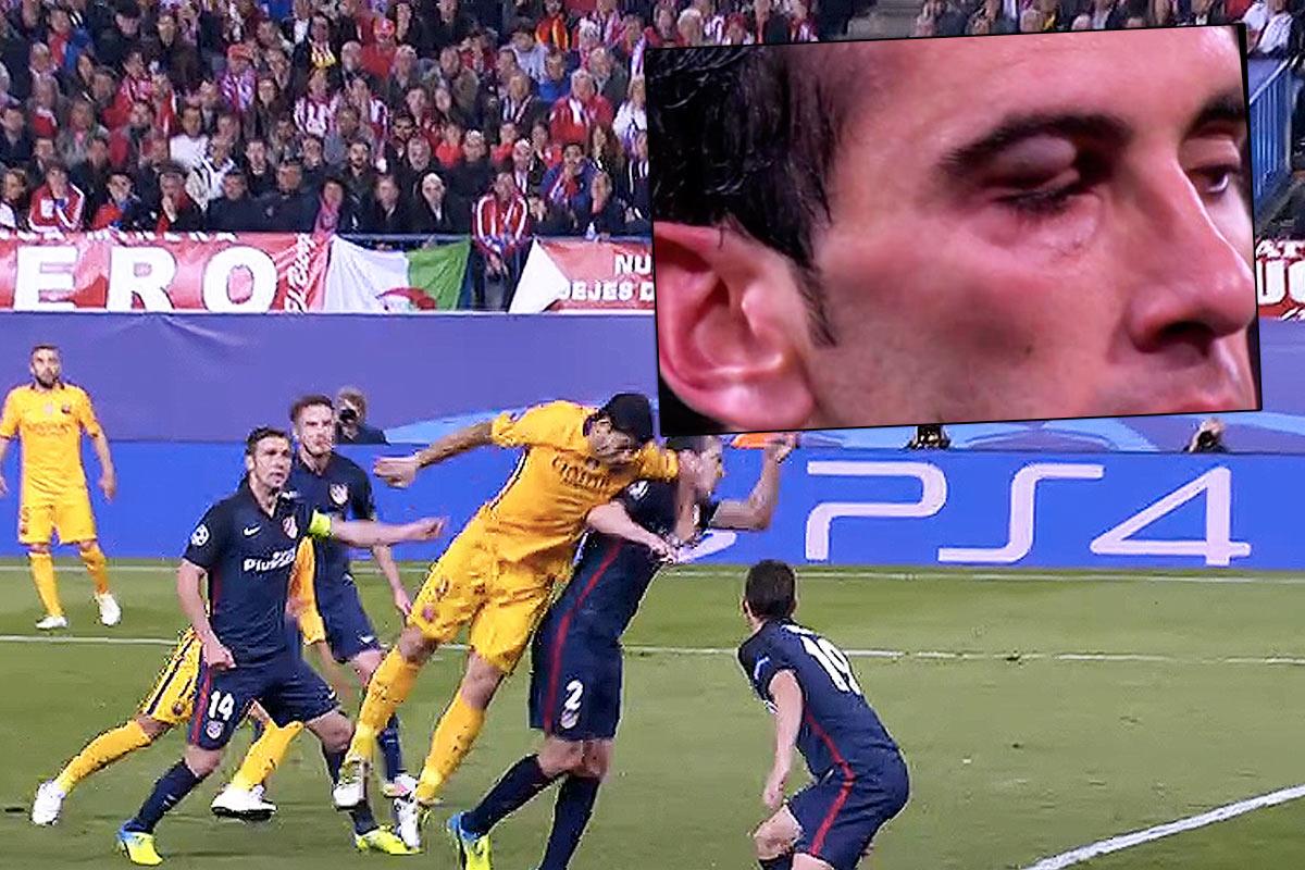 Luis Suárez dejó el ojo a su amigo Godín muy perjudicado.