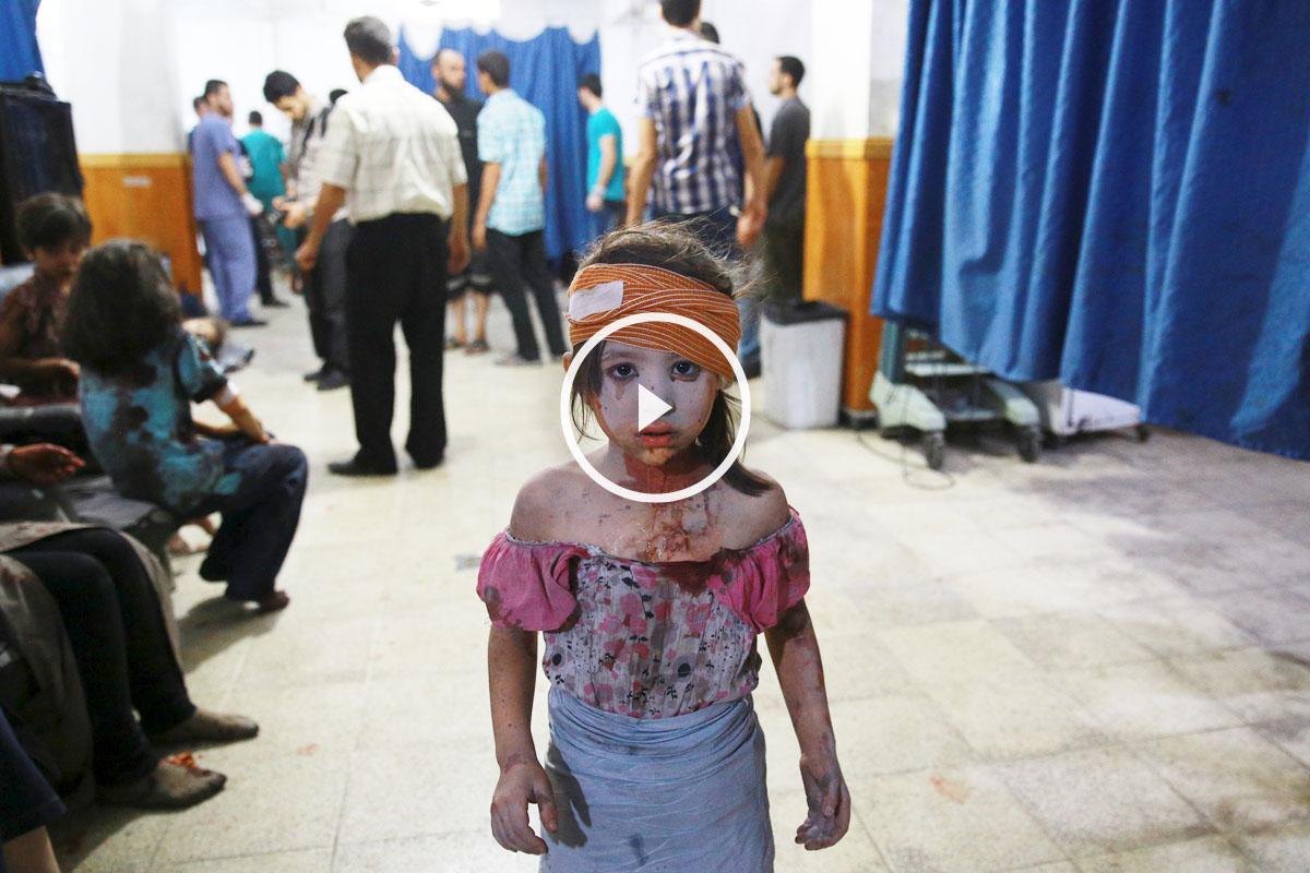 Una niña siria resulta herida en uno de tantos enfrentamientos en el país. (Foto: Abd Doumany/AFP)