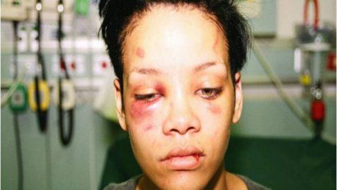 Rihanna golpeada por Chris Brown
