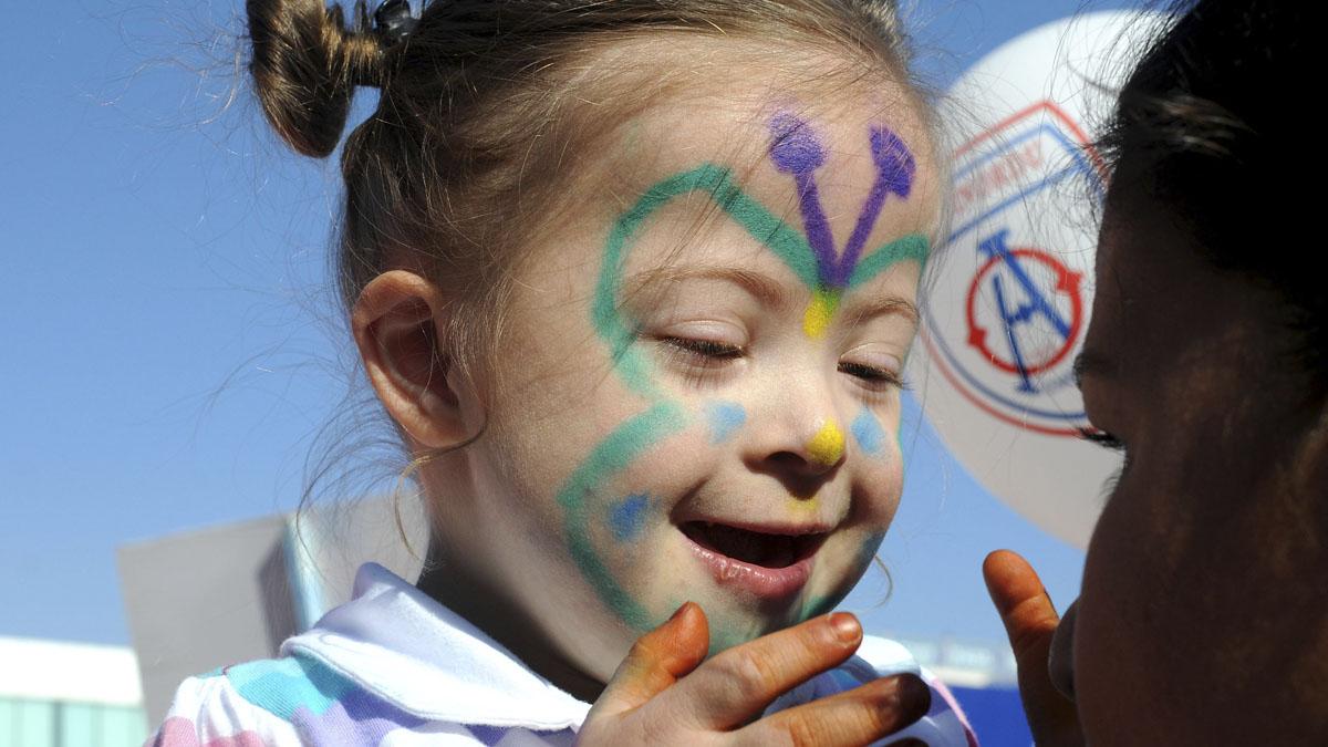 El síndrome de Down se creía hasta ahora huérfano de tratamiento. (Foto: Getty)