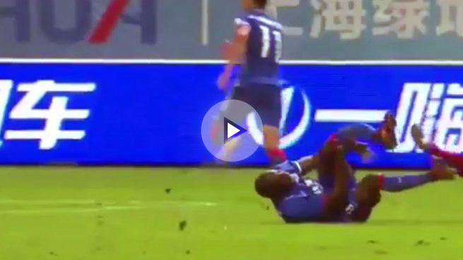 Escalofriante lesión de Demba Ba: se parte la pierna tras chocar con un rival