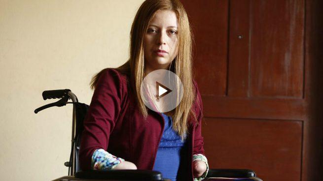 Una negligencia médica al operarla de cálculos renales ha dejado a esta chica sin extremidades