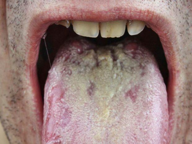 leucoplasia-oral-enfermedades-lengua