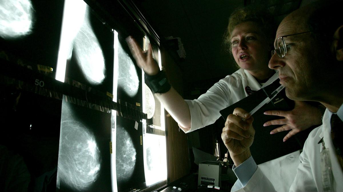 Una pareja de doctores analizan las radiografías de una enferma de cáncer de mama. GETTY
