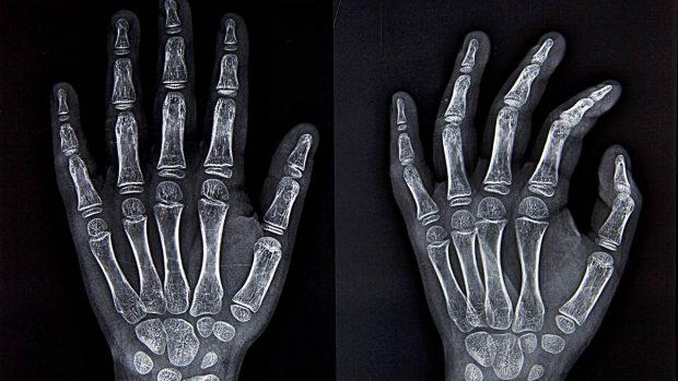 huesos-esqueleto-cuantos