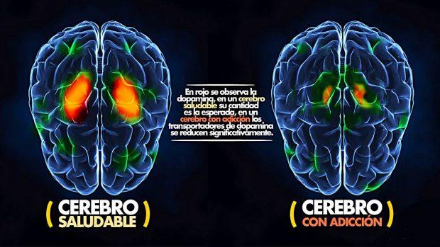sistema recompensa cerebro adicciones