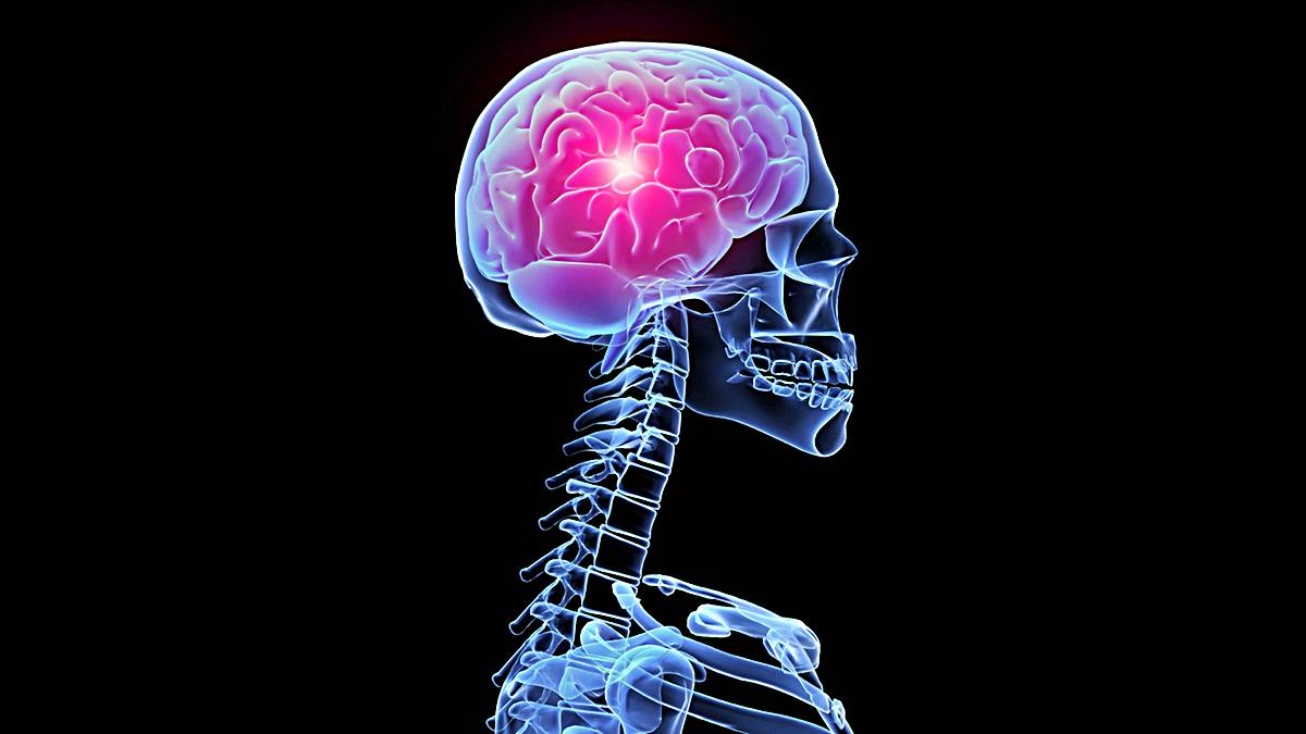 neuronas muerte cerebro
