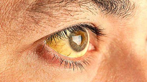 Descubre por qué los ojos se ponen amarillos