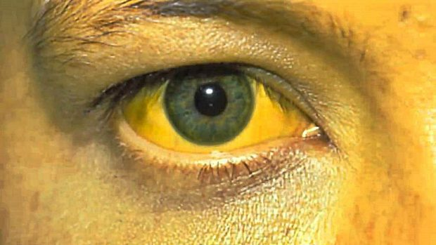 Como se ven las manchas de pigmento a los niños