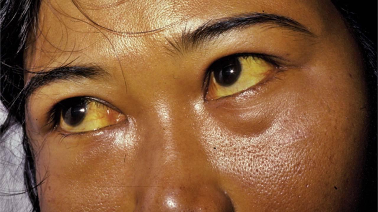 ictericia ojos amarillos que