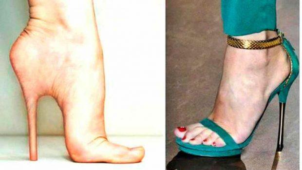 cirugia cenicienta zapatos tacon comodos bb