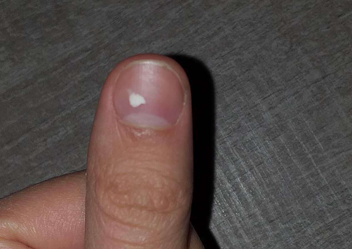 ¿Qué son las manchas blancas en las uñas?