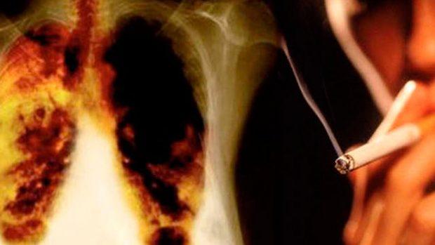 Las 5 enfermedades más comunes causadas por el tabaco