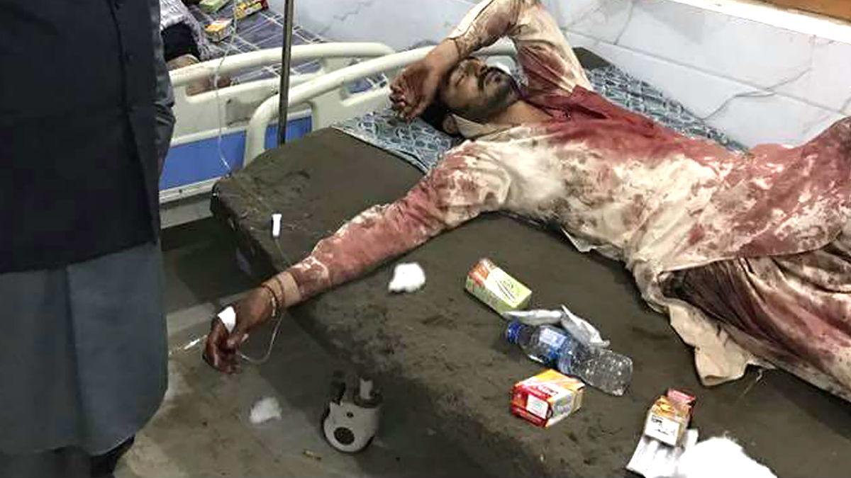 Un herido en la explosión es atendido en un hospital (Foto: AFP).