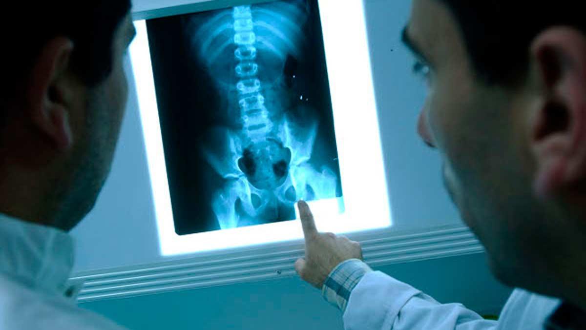 Los datos y usos más curiosos sobre los rayos X
