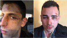 Imagen que compartió uno de los agredidos en su Facebook.