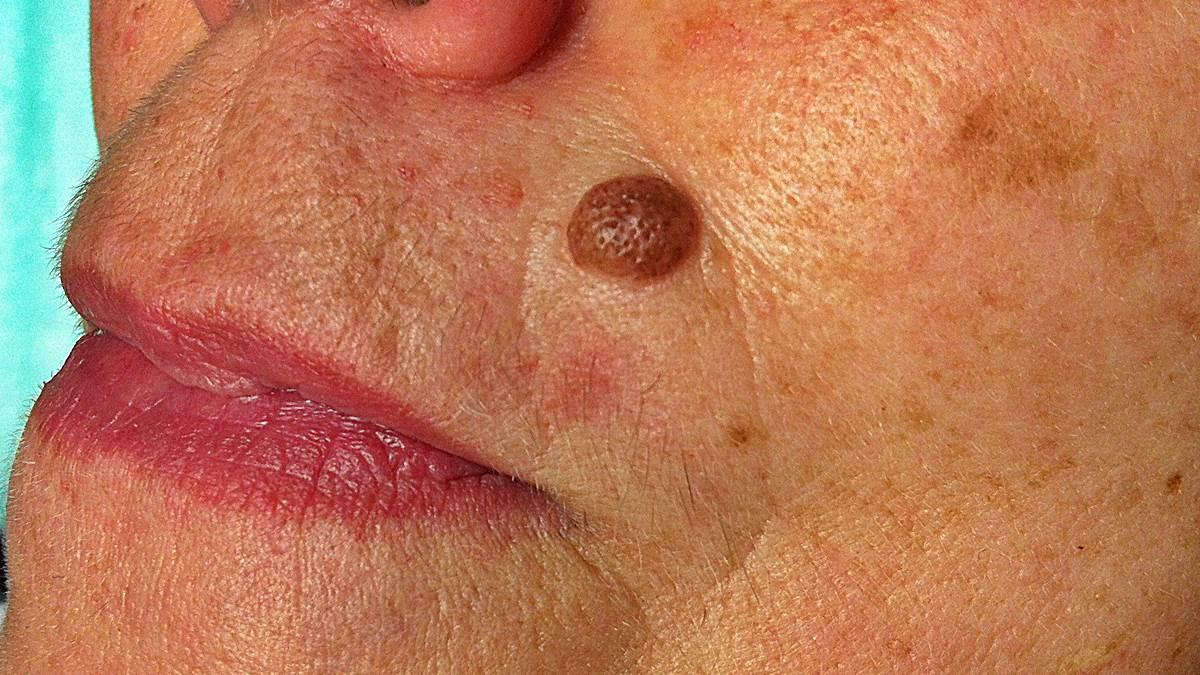 Verrugas rojas en la piel