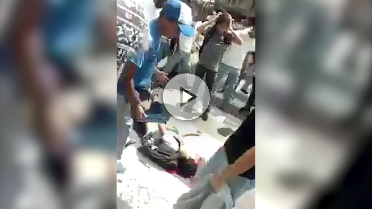 Disparo en la cabeza joven opositor-PLAY
