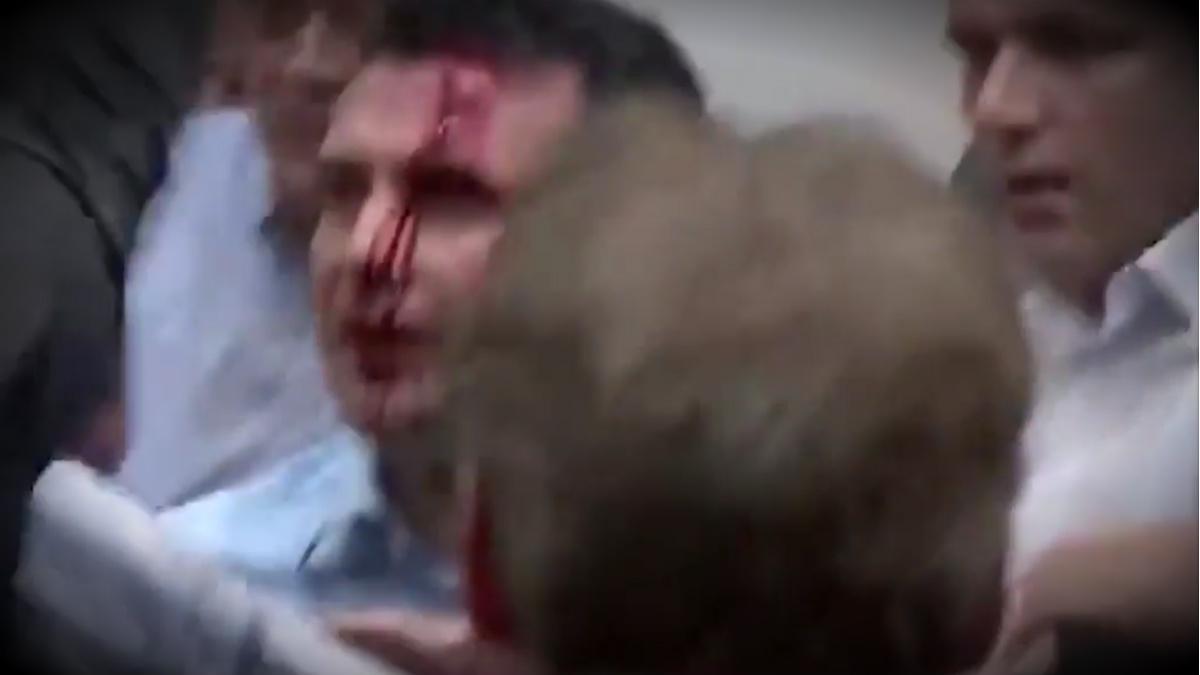 Zoran Zaev, líder socialdemócrata en el Parlamento de Macedonia, ensangrentado tras el asalto.