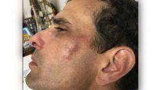 El opositor Henrique Capriles tras ser golpeado por el GNB.