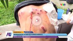 Un opositor muestra las heridas causadas por los cartuchos de balines disparados por la GNB en Caracas.