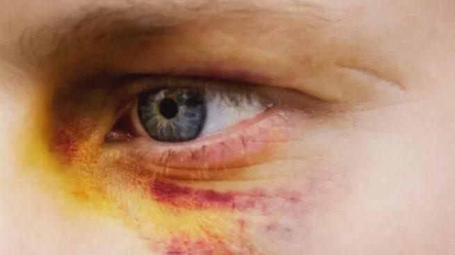como se quita lo morado del ojo