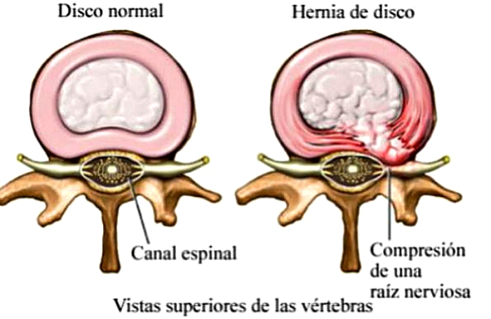 C mo vivir con una protusi n discal pasos que te ayudar n - Ejercicios en piscina para hernia discal l5 s1 ...