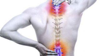 Una protusión discal suele confundirse con la hernia discal.