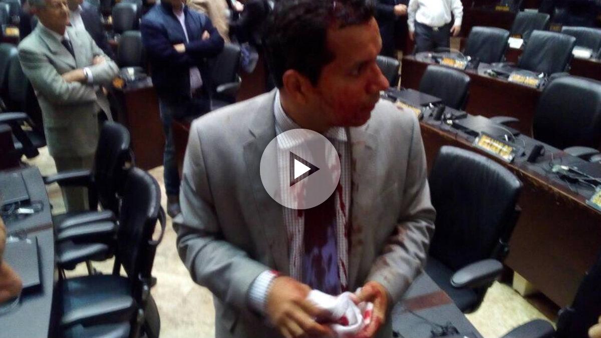 Un diputado opositor golpeado por colectivos de Maduro en la Asamblea Nacional.