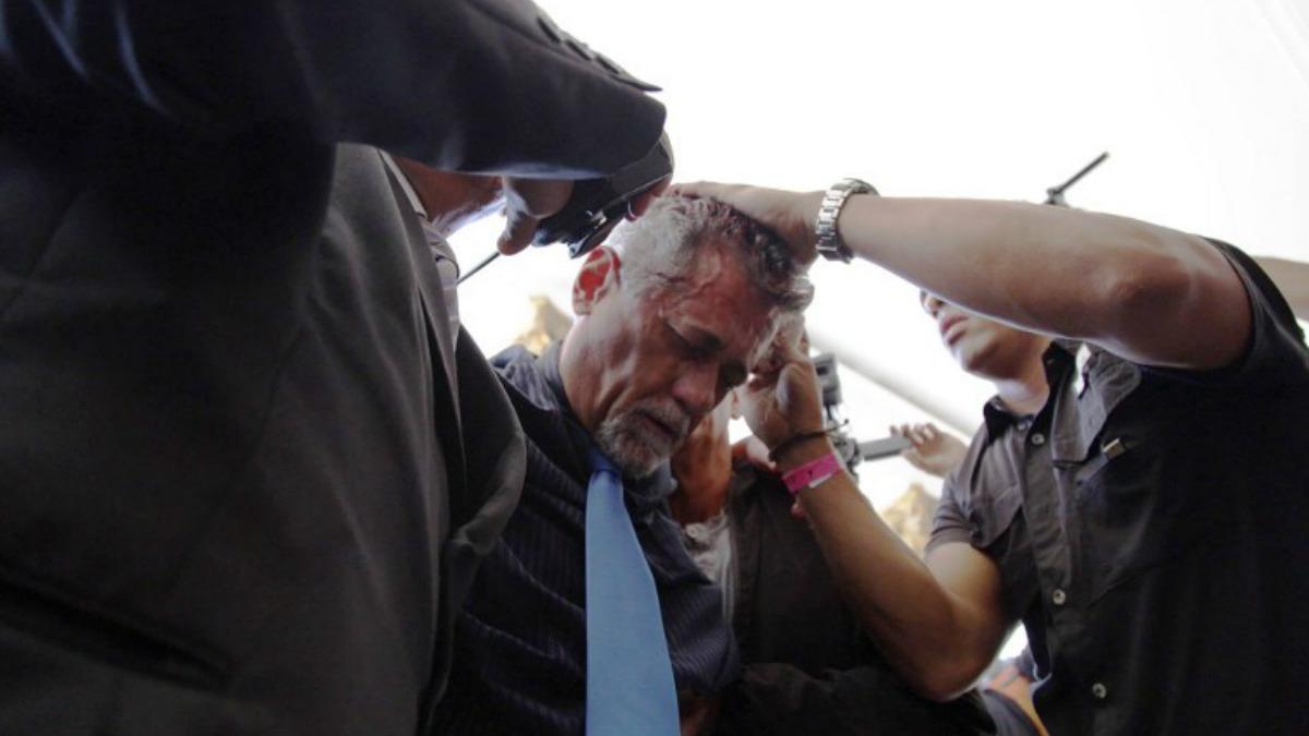 Américo de Grazia, diputado opositor al régimen de Maduro del Parlamento de Venezuela, ha resultado herido en el asalto. Foto: AFP
