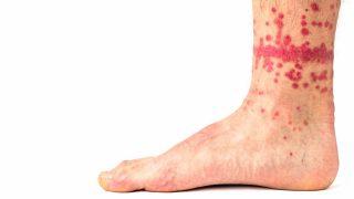Las picaduras de pulgas son más frecuentes en tobillos y piernas