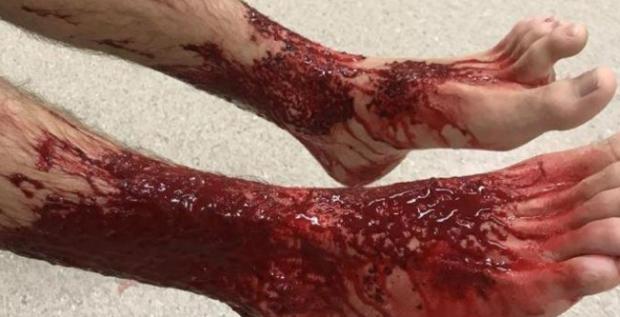 Así estaban los pies del el joven tras ser atacado por misteriosas criaturas marinas que comen carne humana.