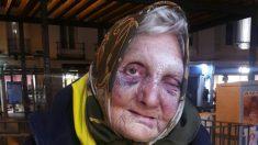 La mujer de 84 años sin hogar agredida en Madrid.
