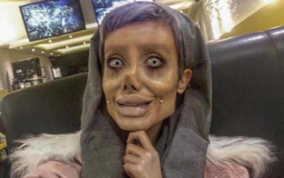 Sahar Tabaar, la mujer que se ha operado 50 veces para parecerse a Angelina Jolie