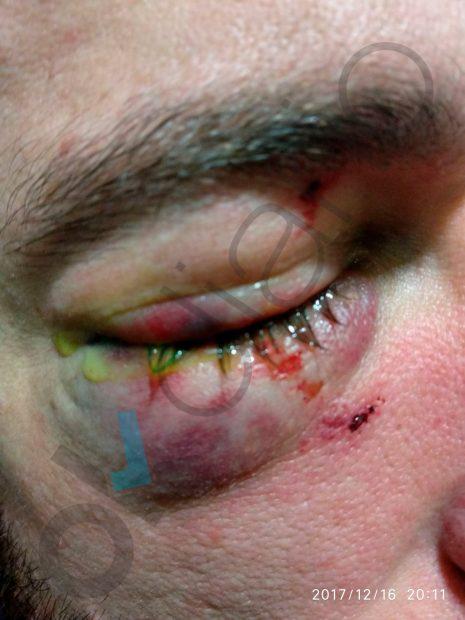 La permisividad de Colau con los manteros provoca un incidente que deja cinco Guardias Urbanos heridos