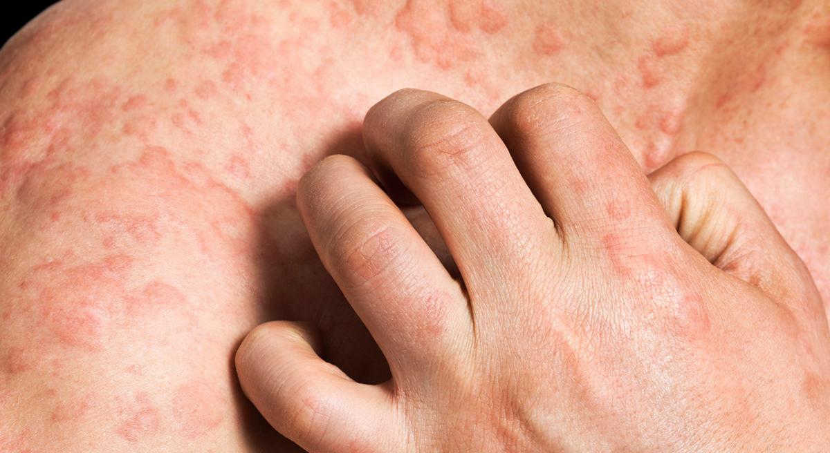 enfermedades de la piel pitiriasis rosada imagenes