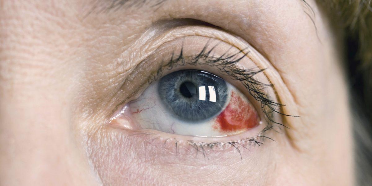 Derrame conjuntival: Definición, causas y tratamiento