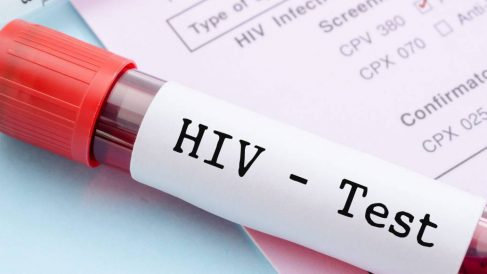 Crean una pastilla que controla el VIH con una dosis semanal.