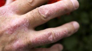 La psoriasis es una enfermedad de la piel no contagiosa.