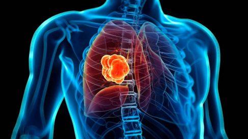 Crean un análisis de sangre que detecta ocho tipos de cáncer.