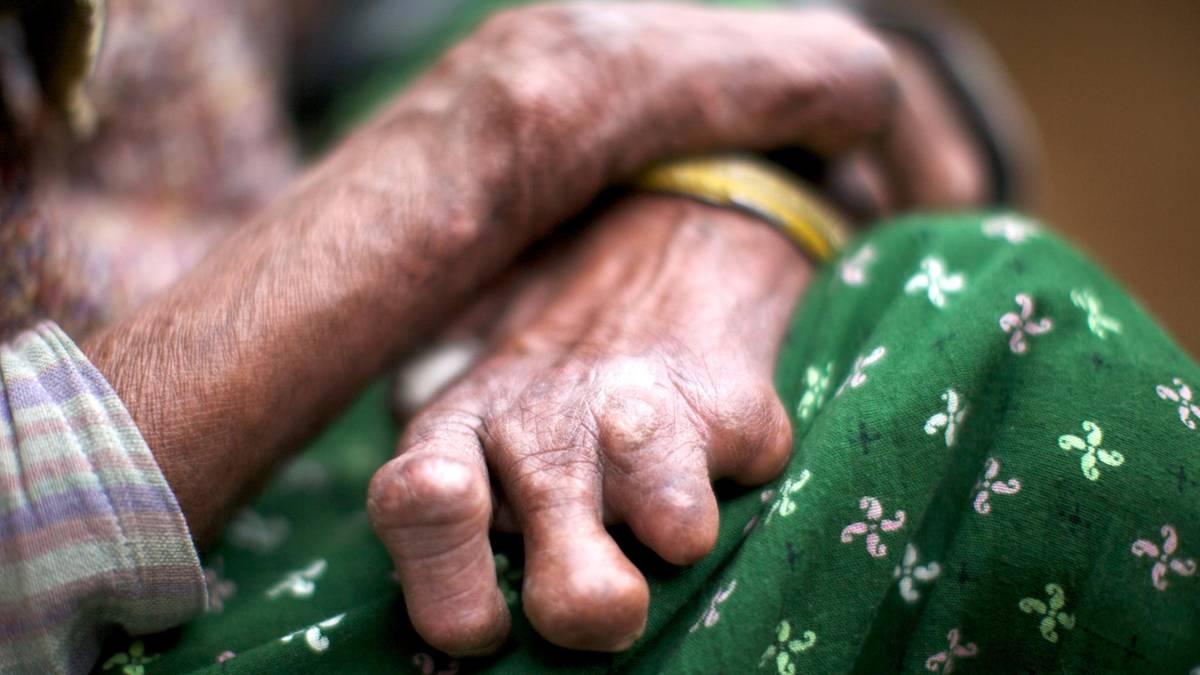 La lepra es una enfermedad infecciosa y crónica, causada por una bacteria.