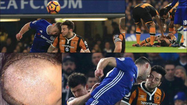 Mason anuncia su retirada del fútbol por el brutal choque con Cahill