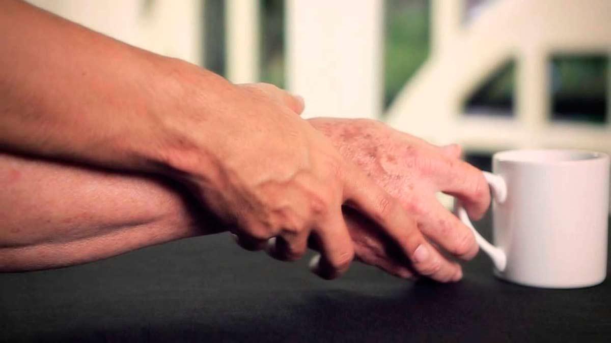 Una enfermedad que afecta cada año a 10.000 nuevos pacientes