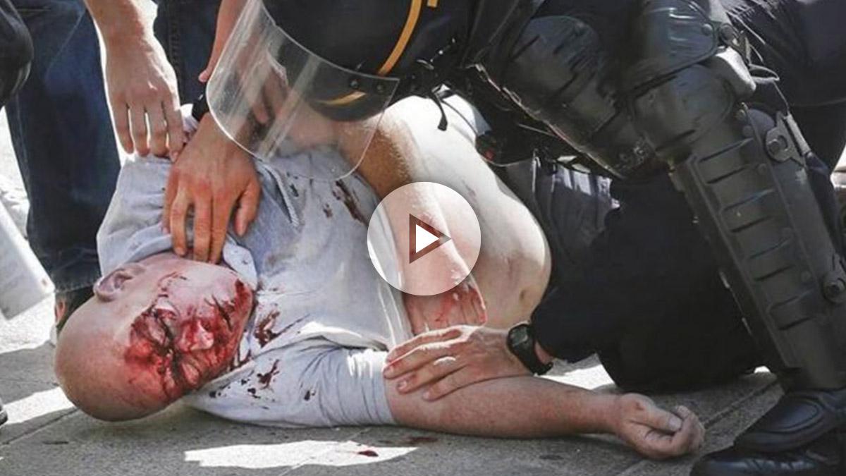 Uno de los heridos durante el enfrentamiento entre los ultras rusos y los ingleses la pasada Eurocopa