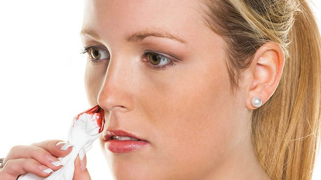Sangrado de nariz vomito y dolor de cabeza